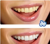 Фото в Красота и здоровье Стоматологии Красивая улыбка служит самым эффективным в Санкт-Петербурге 6500